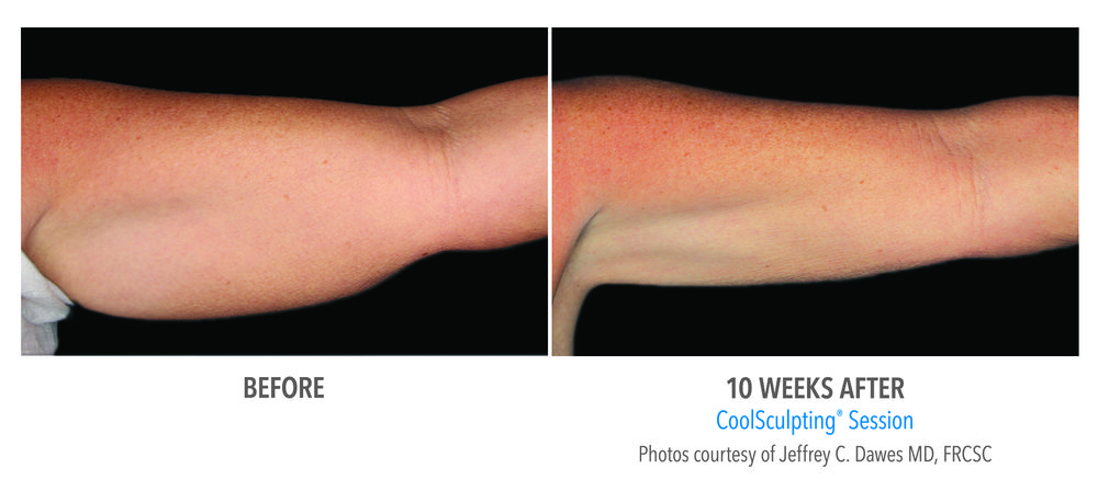 hand coolsculpting - before and after - epiclinic