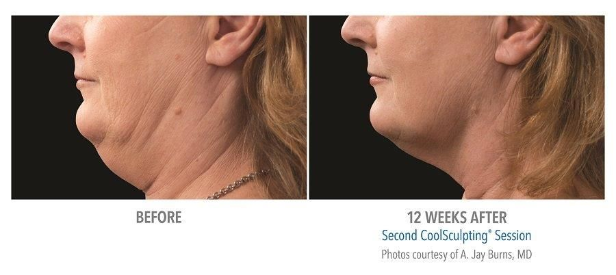 CoolSculpting - double chin - epiclinic