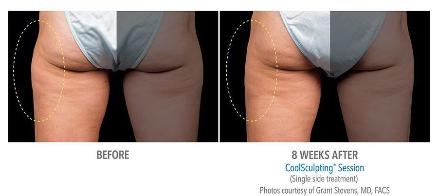 CoolSculpting at epiclinic - before and afters 01