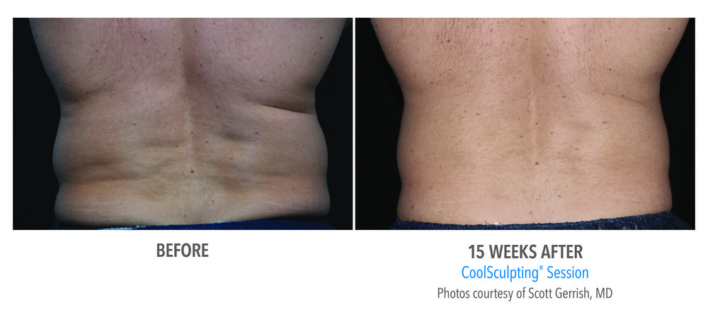 CoolSculpting - man - before and after