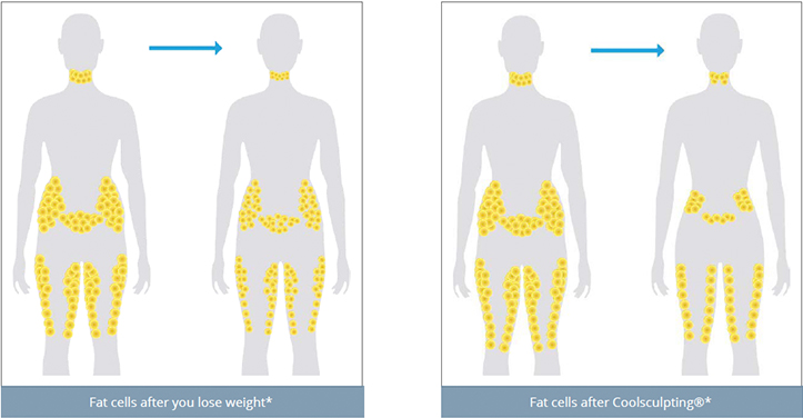 original coolsculpting image