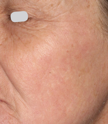 skin resurfacing - after image - real patient