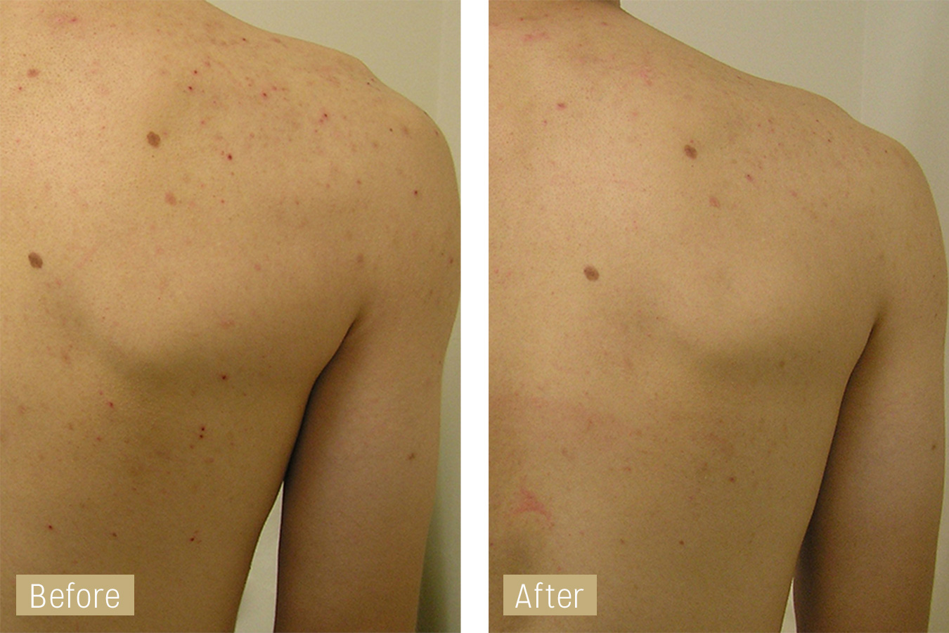 acne treatment with hydrafacial - before and after image