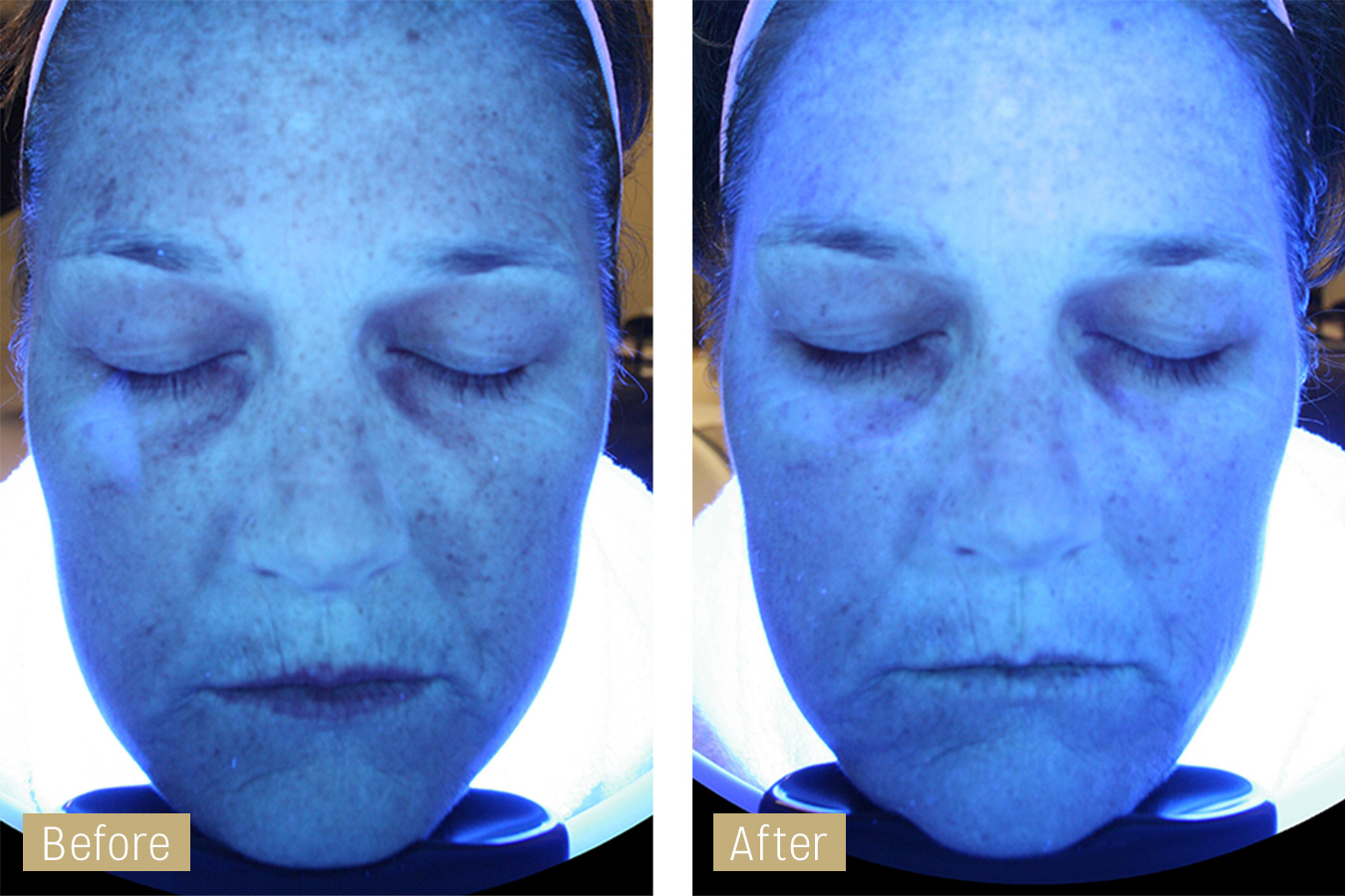 hydrafacial scan image - before and after