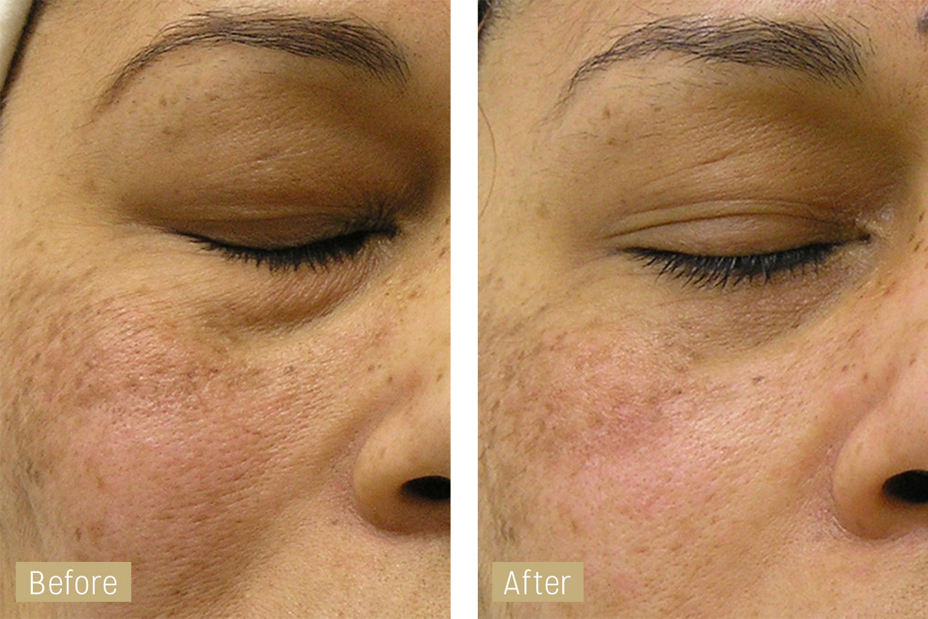 large pores treatment with hydrafacial