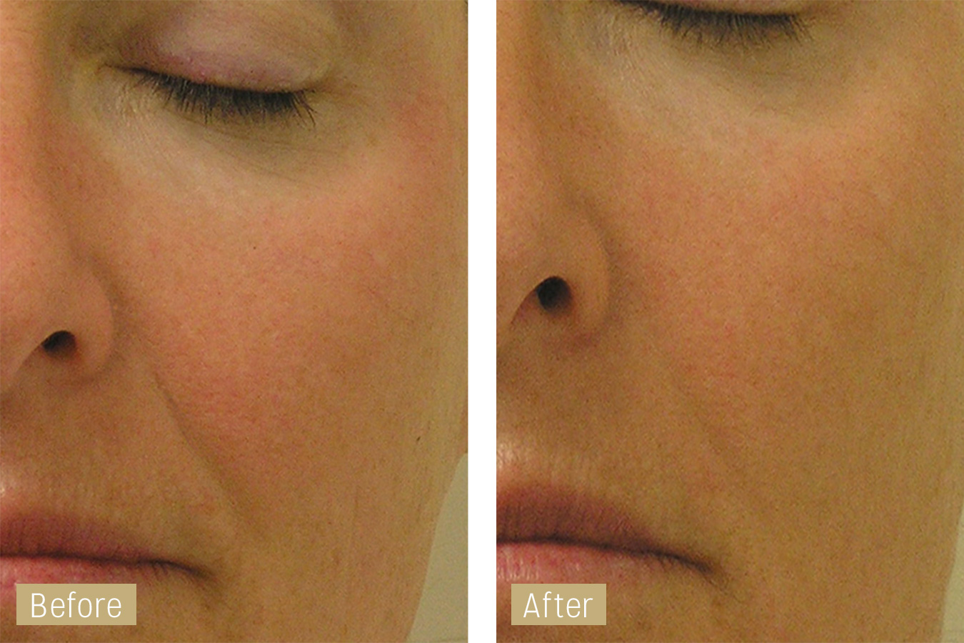 nasal fold treatment - hydrafacial before and after