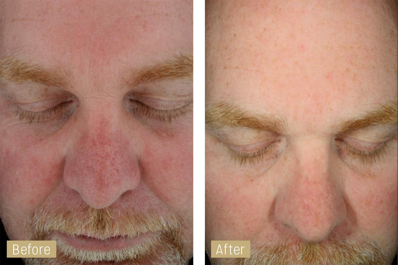 sun damage treatment - hydrafacial before and after