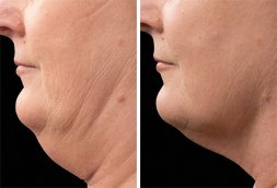 Chin CoolSculpting patient, before and after 01, epiclinic®