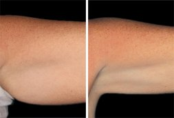 CoolSculpting before and after 02, left arm, small image