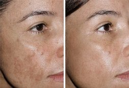 fraxel laser before and after - image 001