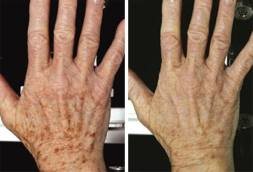 fraxel laser before and after - image 002