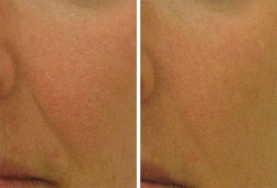 hydrafacial before and after - image 001