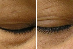 hydrafacial before and after - image 002