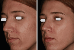 acupluse before and after - image 001