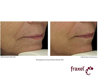 fraxel laser treatment before ad after - image 011