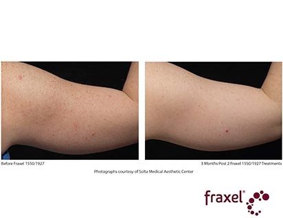 fraxel laser treatment before ad after - image 012