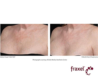 fraxel laser treatment before ad after - image 014