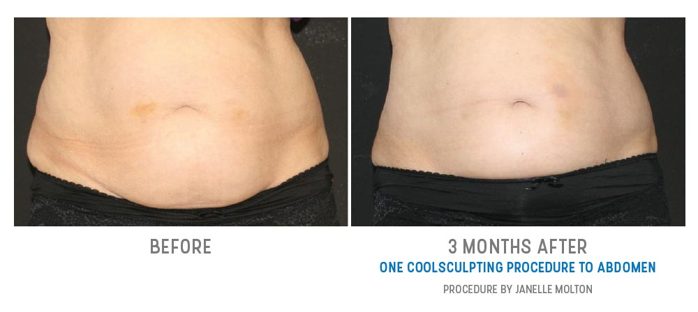 abdominal coolsculpting before and after - image 031 - front view