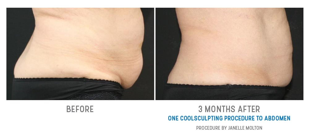 coolsculpting to abdomen - image 012 - before and afters - side view