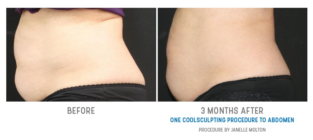 coolsculpting to abdomen before and after - image 011 - side view