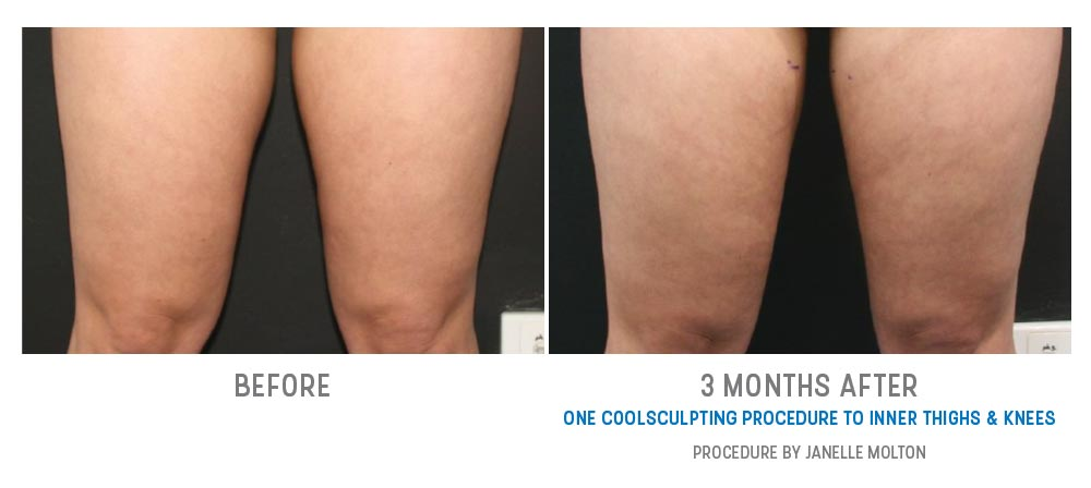 inner thighs & knees fat freezing - before and after - image 030 - front view