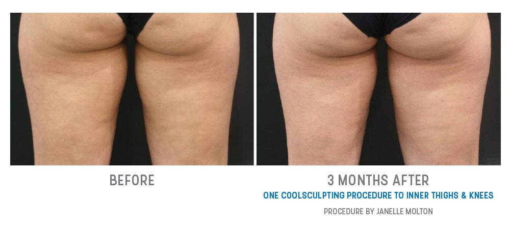 inner thighs & knees coolsculpting before and after - image 002 - back view