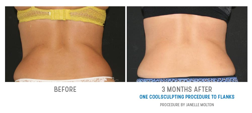 coolsculpting to flanks - before and after - image 029 - back view