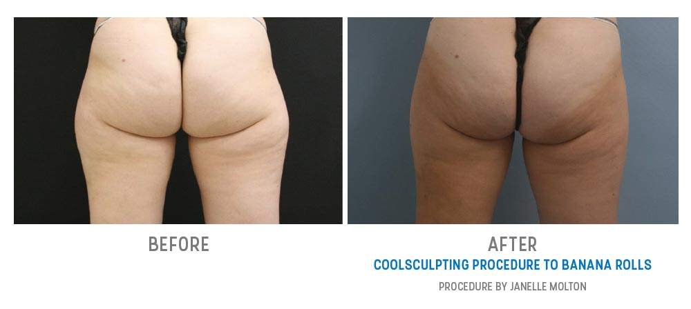 coolsculpting to banana rolls before and after - image 010 - back view