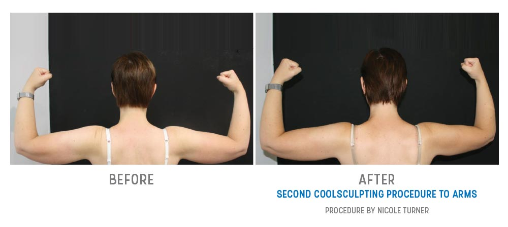 second coolsculpting to arms - before and after - image 026 - back view