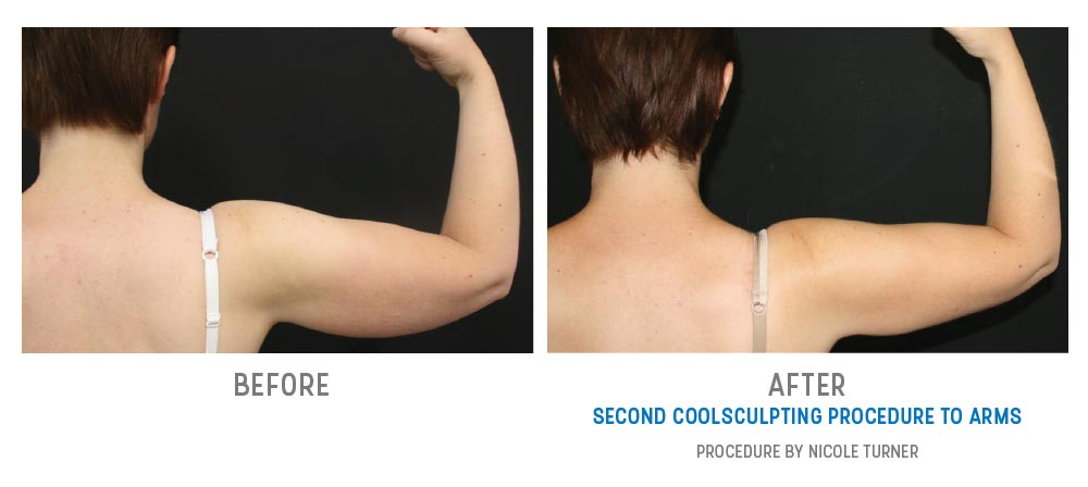 arms coolsculpting before and after - right arm - image 007 - back view
