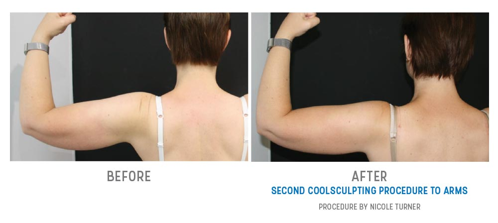 arms coolsculpting before and after - image 006 - back view