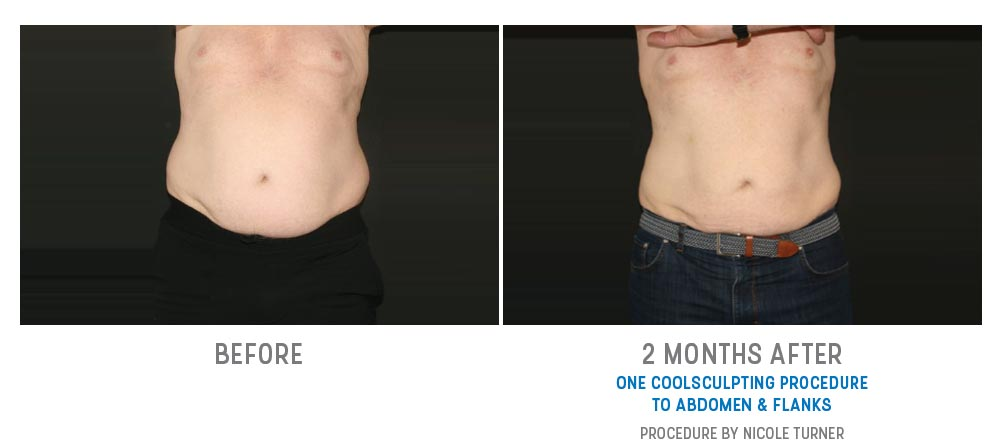 coolsculpting to abdomen and flanks before and after - image 025 - front view