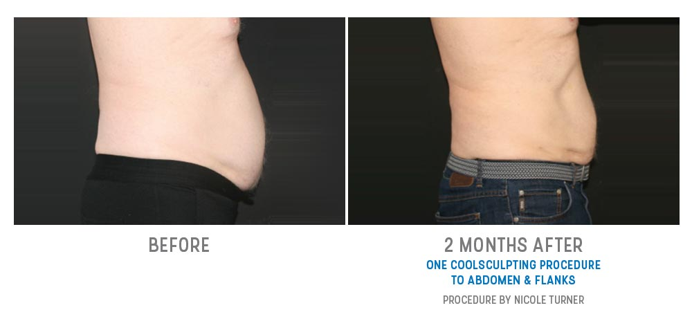 abdomen & flanks coolsculpting before and after - image 005 - side view