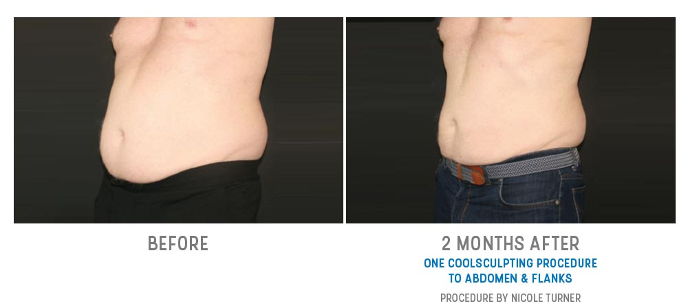abdomen & flanks coolsculpting before and after - image 004 - 45 degree view