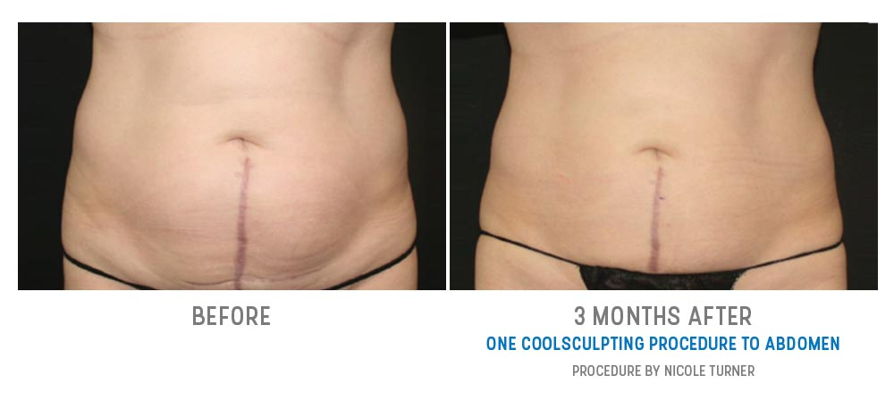 fat freezing before and after gallery - image 024 - front view