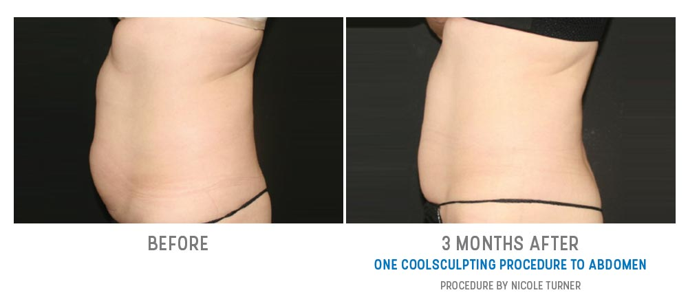 coolsculpting to abdomen - before and after gallery - image 023 - side view