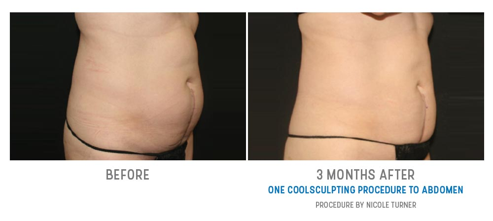 abdomen coolsculpting before and after - image 003 - side view