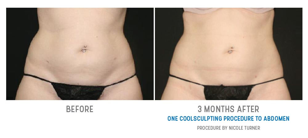 coolsculpting to abdomen - before and after - image 019 - front view