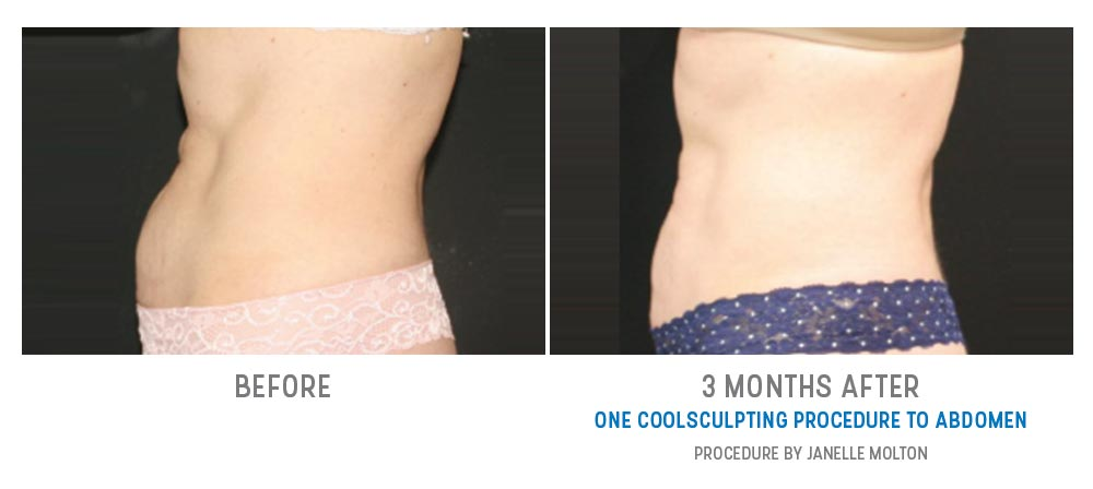 abdominal fat freezing before and after - image 015 - side view