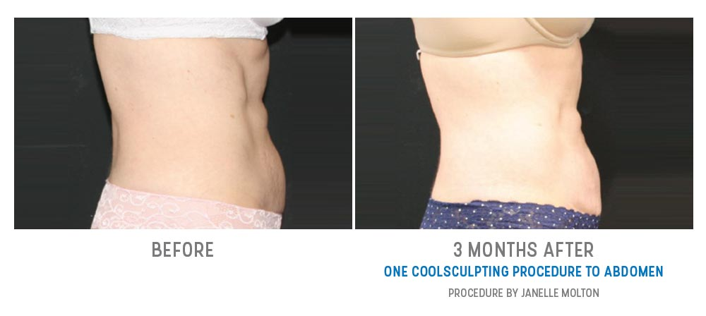 coolsculpting to abdomen - before and after - image 015 - side view