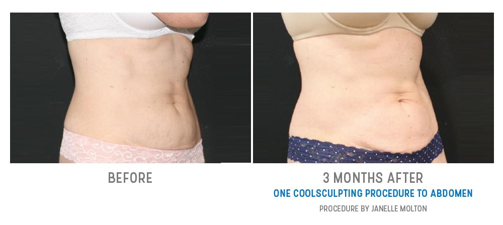 abdominal coolsculpting before and after - image 013 - 45 degree view