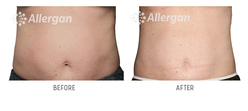 abdominal coolsculpting before and after - patient 001 - front view