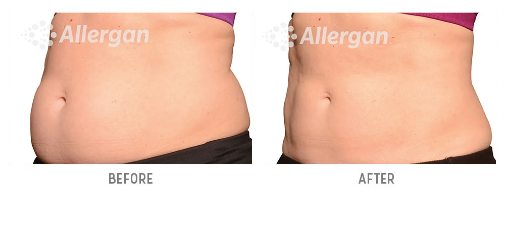 abdominal coolsculpting before and after - patient 002 - 45 degree view