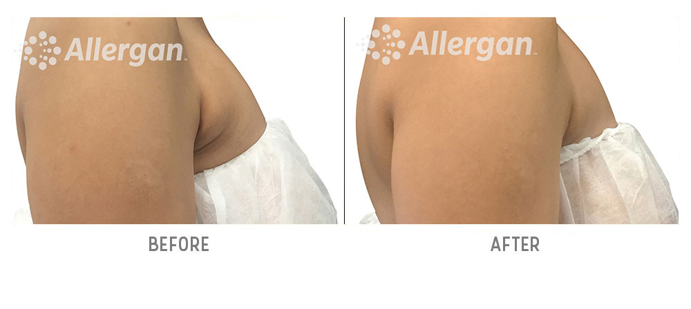 bra fat coolsculpting before and after - patient 001 - side view