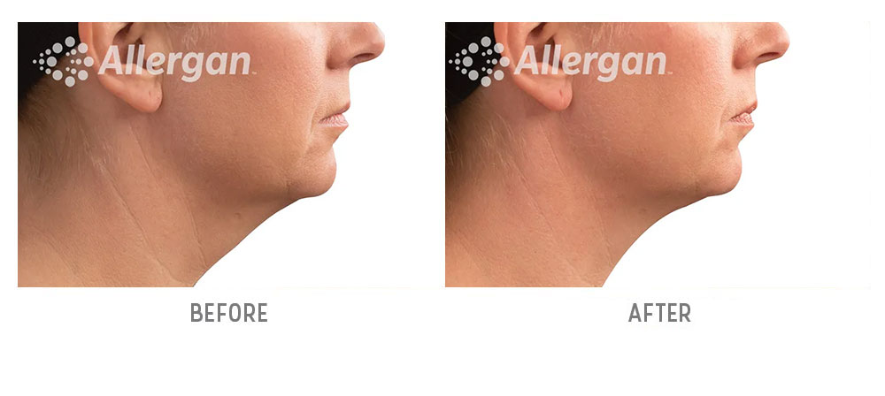 chin coolsculpting before and after - patient 001 - front view