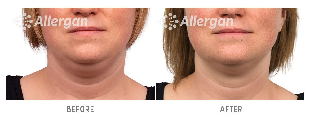 chin coolsculpting before and after - patient 002 - front view