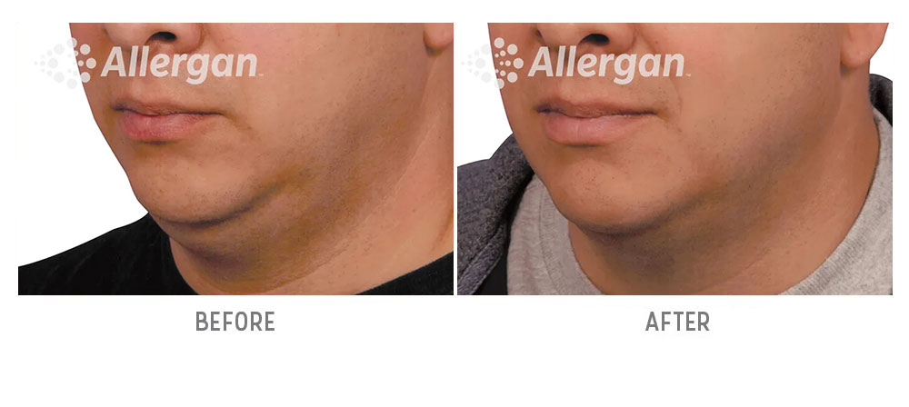 chin coolsculpting - before and after - patient 003 - 45 degree view