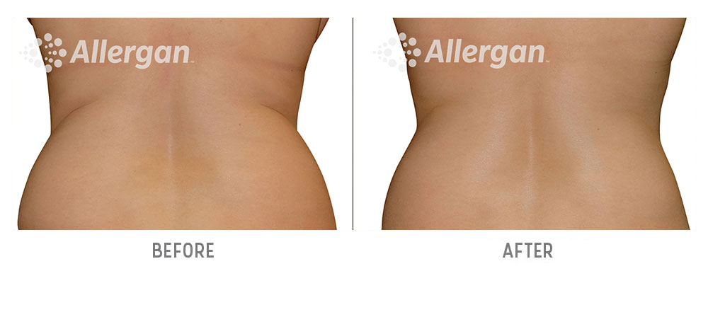 sides coolsculpting before and after - patient 001 - back view