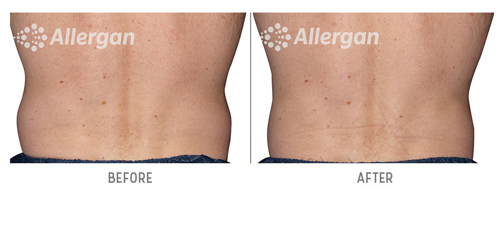 sides coolsculpting before and after - patient 002 - back view