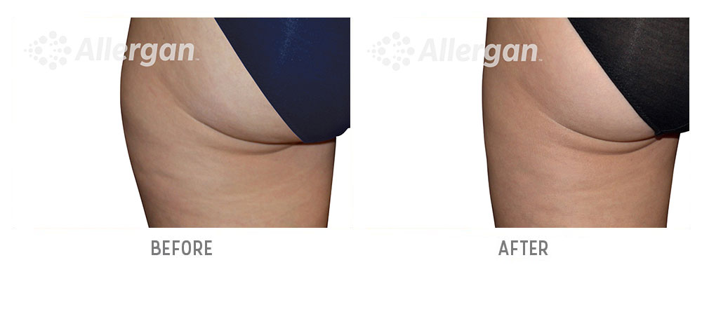 thigh coolsculpting before and after - patient 001 - back view